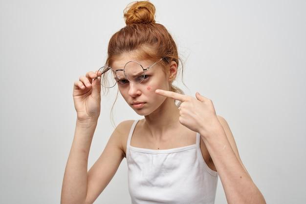 Roodharige vrouw met bril puistje op gezicht dermatologie huidverzorging