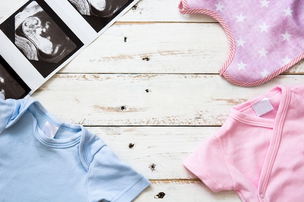 Roze en blauwe baby kruippakje en echografie op witte houten achtergrond met copyspace