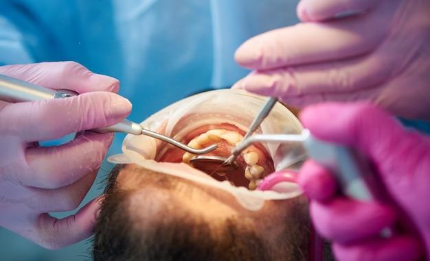 Schaal- en polijstprocedure voor tanden