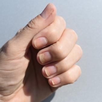 Schimmelnagelinfectie onycholyse na schellak of gelvernis