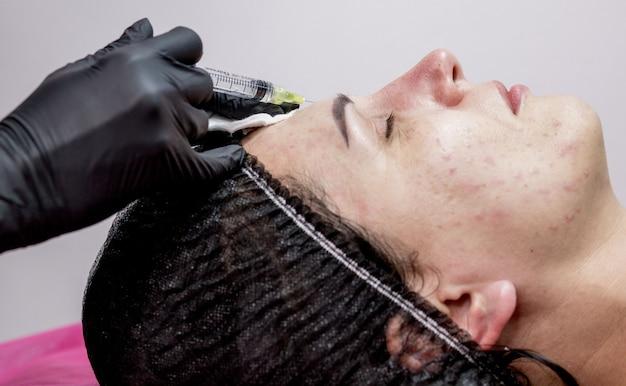 Schoonheidsspecialist arts maakt meerdere injecties biorevitalisatie met hyaluronzuur in de huid van het gezicht van de vrouw, close-up. vrouw op de procedure van mesotherapie-injectie.