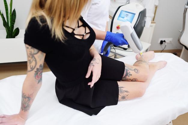 Schoonheidsspecialist verwijdert de tatoeage op het been van een jong mooi meisje met een laser. lasercosmetologie