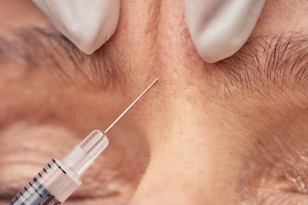 Schoonheidsspecialiste die een injectie geeft aan vrouwelijke rimpel