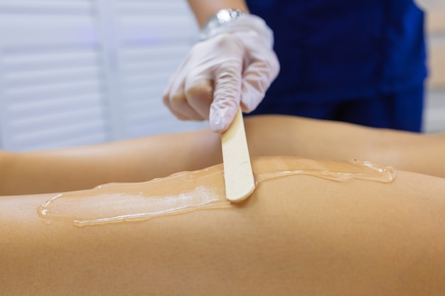 Schoonheidsspecialiste geven epileren laserbehandeling aan vrouw op dij.