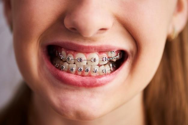 Schot van tanden met beugel
