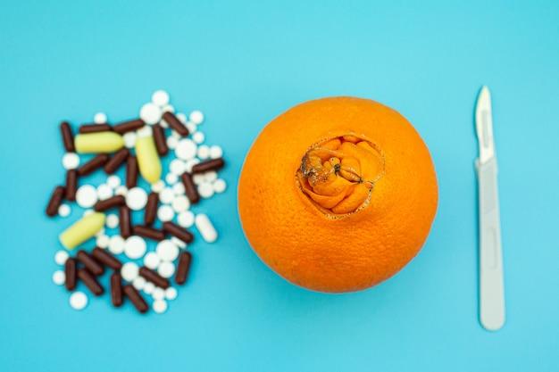 Sinaasappelen met een grote navel, pillen, scalpel op een blauwe achtergrond. concept van medische of chirurgische behandeling van aambeien.