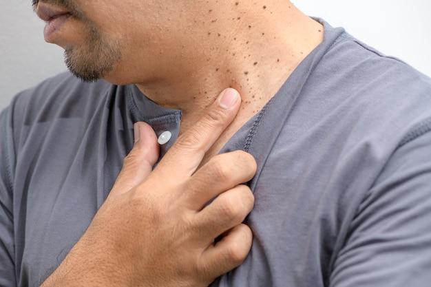 Sloot de skin tags of acrochordon op nek man op witte achtergrond.