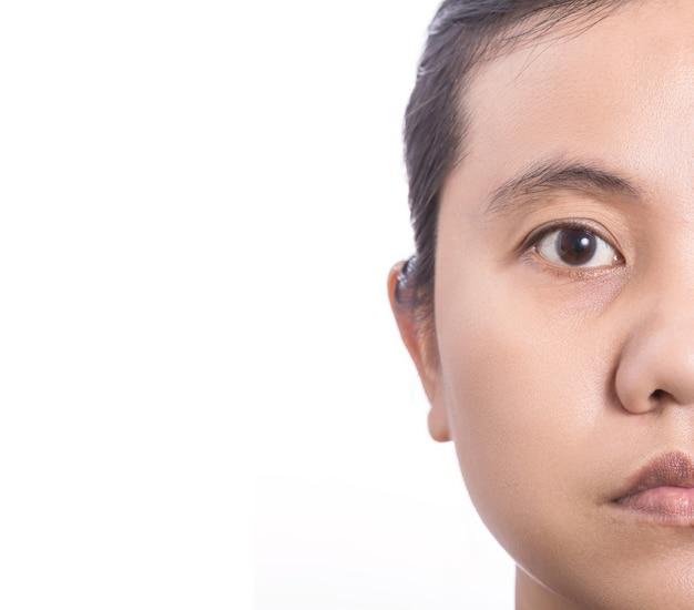 Sluit omhoog aziatische vrouw die het probleem van de gezichtshuid met grote ogenzak, huidporie tonen