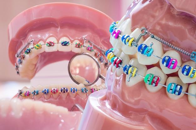 Sluit omhoog tandartshulpmiddelen en orthodontisch model