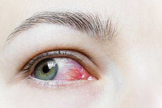 Sluit omhoog van een ernstig bloeddoorlopen rood oog. virale blefaritis, conjunctivitis, adenovirussen. geïrriteerd of geïnfecteerd oog.