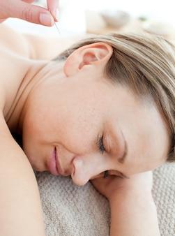 Sluit omhoog van een jonge vrouw in acupunctuurtherapie