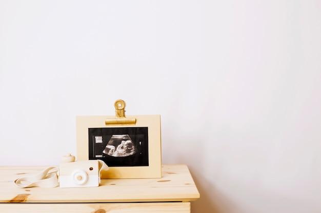 Sonogram afbeelding van baby