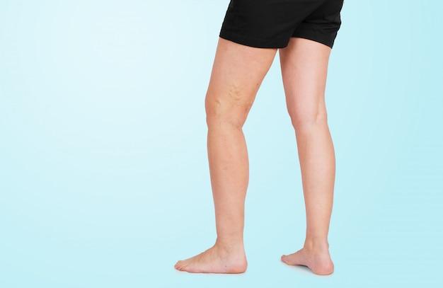 Spataderen op vrouwelijke benen geïsoleerde blauwe achtergrondgezondheid