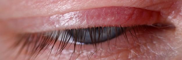 Stal op huidziekte van het menselijk oog