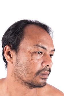 Steken littekens op het gezicht