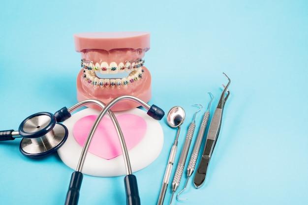 Stethoscep en orthodontisch model