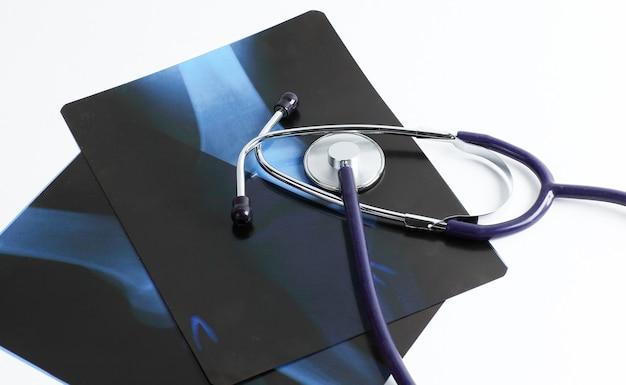 Stethoscoop en röntgenfoto's op een witte background.the concept van gezondheid