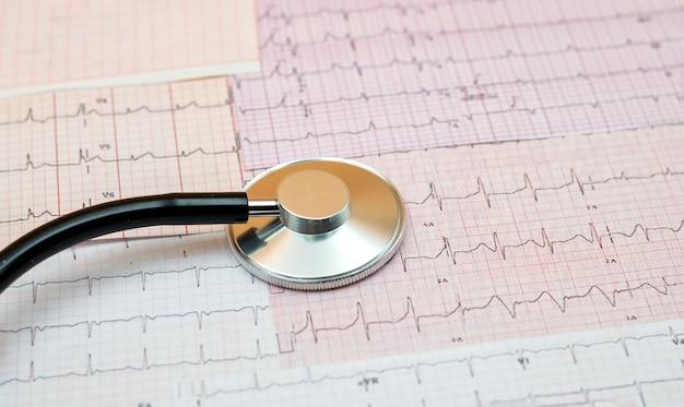 Stethoscoop op de resultaten van een elektrocardiogram, hartziekte, vroege diagnose