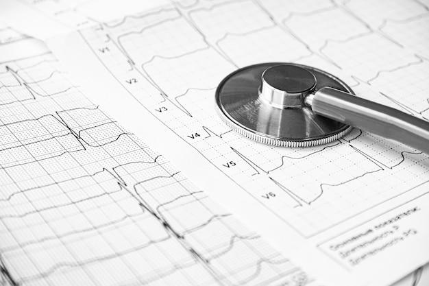 Stethoscoop op het elektrocardiogram ecg-grafiek bovenaanzicht. ecg-afdruk met stethoscoop. medisch gezondheidsconcept. auscultatie, luisteren naar de hartslag met een stethoscoop