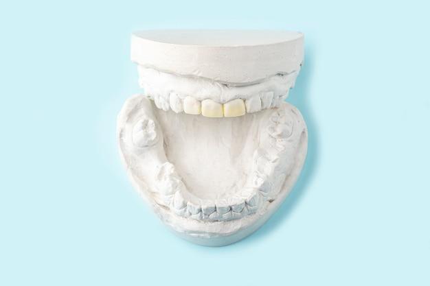 Stomatologische gips, mallen van menselijke kaken en tanden op blauwe tafel. gipsgips voor de vervaardiging van kunstgebitten, beugels of kunstgebits. tandheelkunde en orthodontie concept.