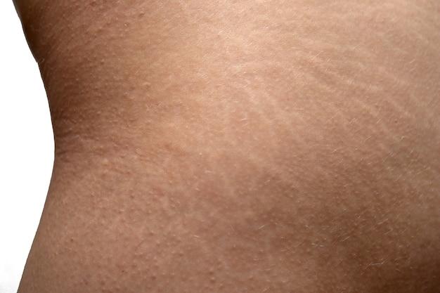 Striae op de huid van de billen van de vrouw