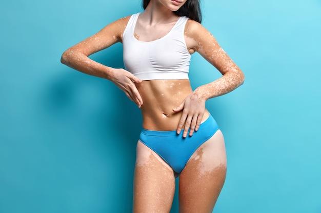 Studio-opname van een vrouw met gelaatstrekken toont bleke vitiligo-vlekken op de huid, draagt een cropped top en slipje