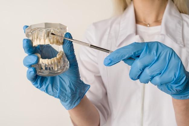Tandarts toont problemen met tanden aan op het voorbeeld van de indeling van de kaak