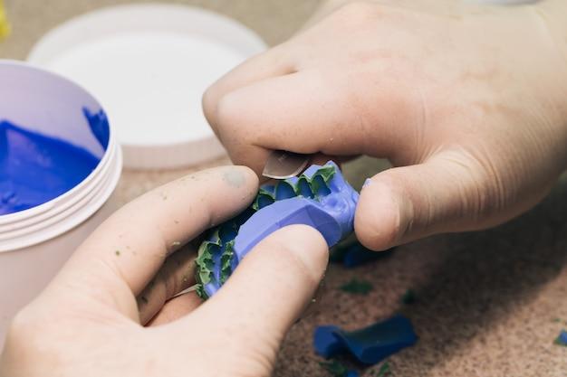 Tandarts werk in moderne tandheelkundige kliniek. sjabloon maken voor tijdelijk fineer met a-siliconen. tandtechnicus maken van gebit in een tandtechnisch laboratorium