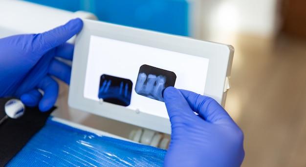 Tandartsen kantoor tandartsen xay of teeth