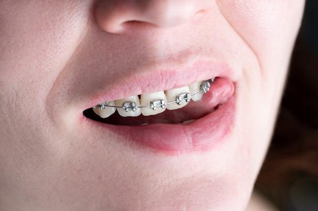 Tanden met beugels close-up geïnstalleerd