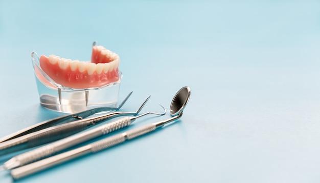 Tandenmodel met een implantaat kroonbrug model tandheelkundige demonstratie tanden studie leren model.