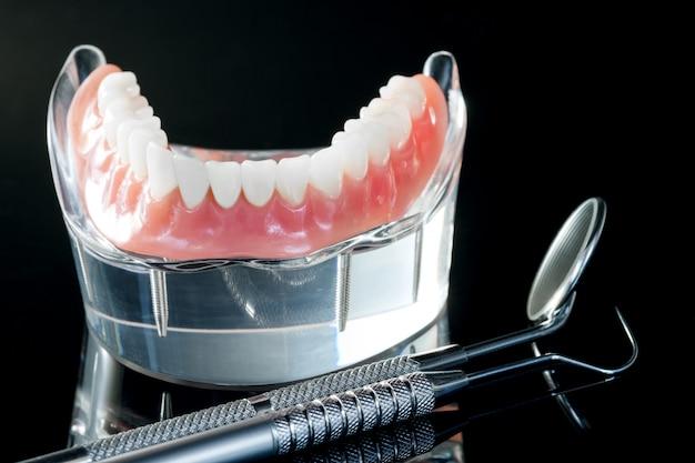 Tandenmodel met een implantaat kroonbrugmodel / tandheelkundige demonstratietandenstudiemodel.