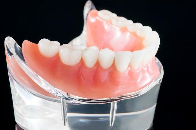 Tandenmodel met een implantaatkroonbrugmodel / tanddemonstratietandenstudie leermodel.