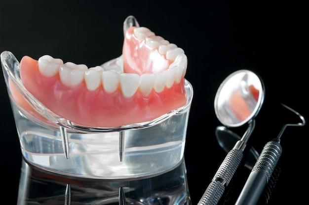 Tandenmodel met een implantaatkroonbrugmodel / tandheelkundige demonstratie tandenstudie leermodel.
