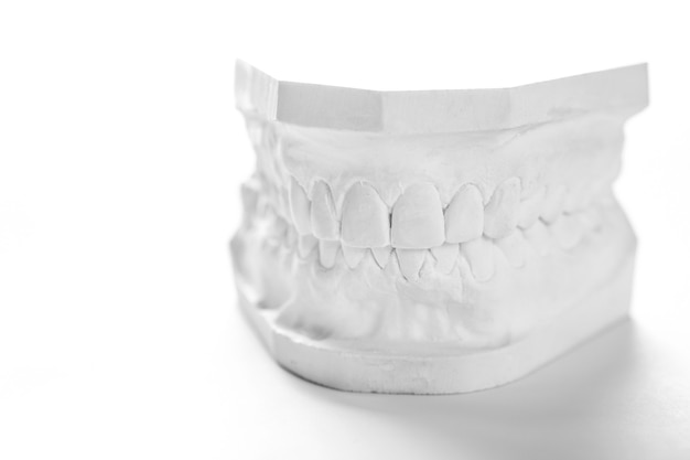 Tandheelkundig gieten gipsmodel gipsverband stomatologisch menselijk kaken prothetisch laboratorium.
