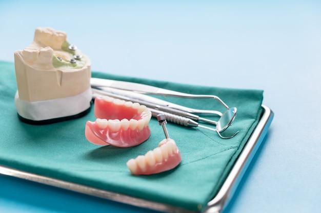 Tandheelkundige implantaatwerkzaamheden zijn voltooid en klaar voor gebruik.
