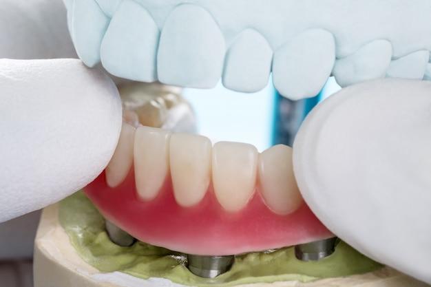Tandheelkundige implantaten ondersteunden overdenture.