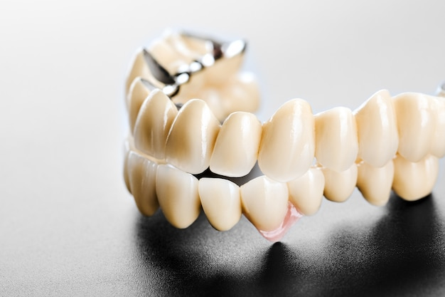 Tandheelkundige keramische brug op geïsoleerde zwart