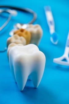 Tandheelkundige model en tandheelkundige apparatuur op blauw