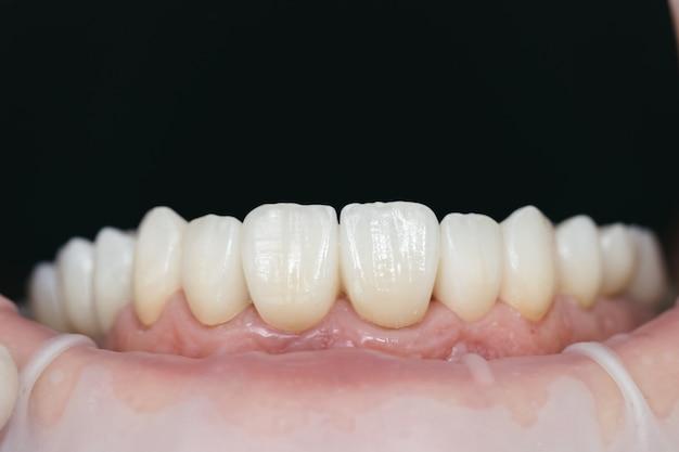 Tandheelkundige zorg. keramisch zirkonium in definitieve versie. kleuring en beglazing. nauwkeurig ontwerp en hoogwaardige materialen.