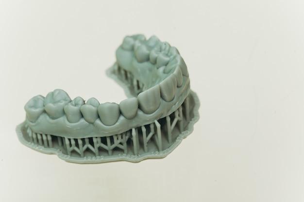 Tandheelkundige zorg. tandplaat in tandarts winkel