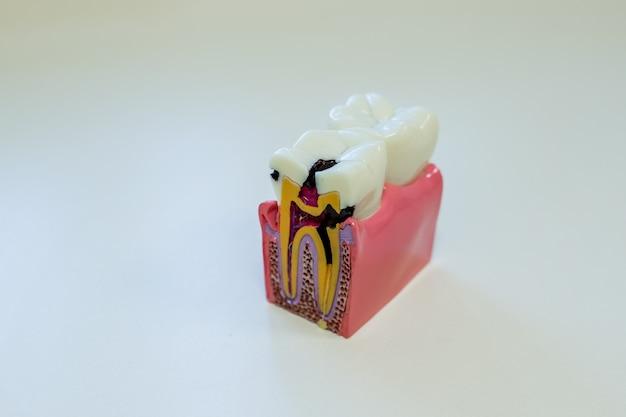 Tandmodel voor onderwijs in geïsoleerd laboratorium. cariës, tandbederf, tandbederf.