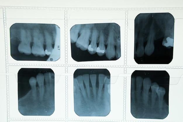 Tandröntgenfilm voor tandverzorgingconcept