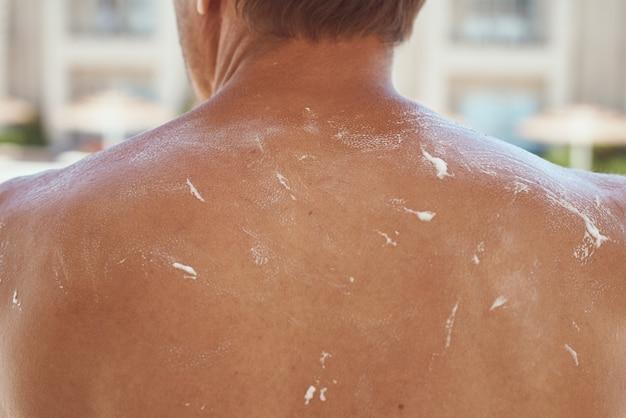 Terug gebruind met zonnebrandcrème