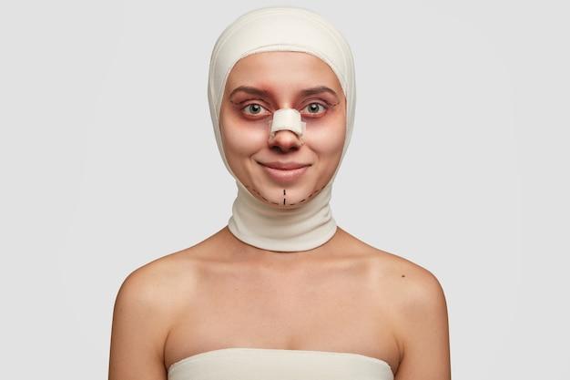 Tevreden jongere met zwarte chirurgische lijnen op oogleden en kin, heeft gezichtscorrectie