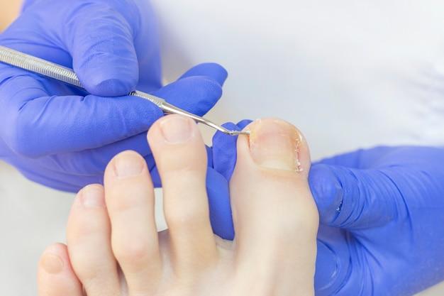 Therapeutische pedicure. meesterpodoloog doet hardware-pedicure. bezoek aan de podologie. voetbehandeling in de spa. kliniek van podiatria.