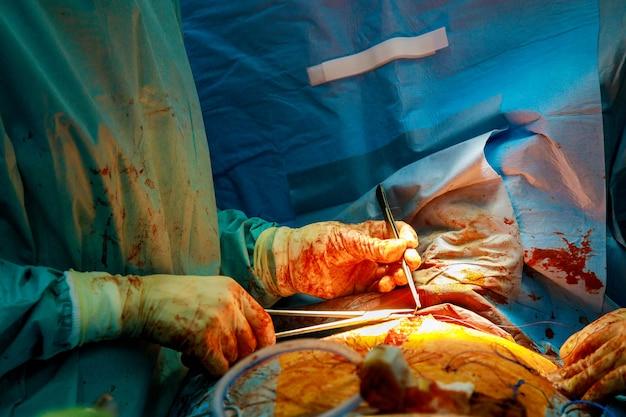 Tijdens de operatie sluit de arts de handen van het open hart van de chirurgen dicht