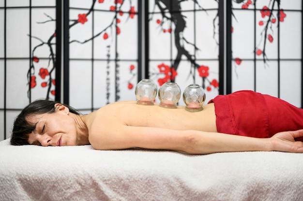 Traditionele chinese geneeskunde therapie. cupping-therapie, een behandeling die wordt gebruikt voor pijnverlichting en andere gezondheidsvoordelen.