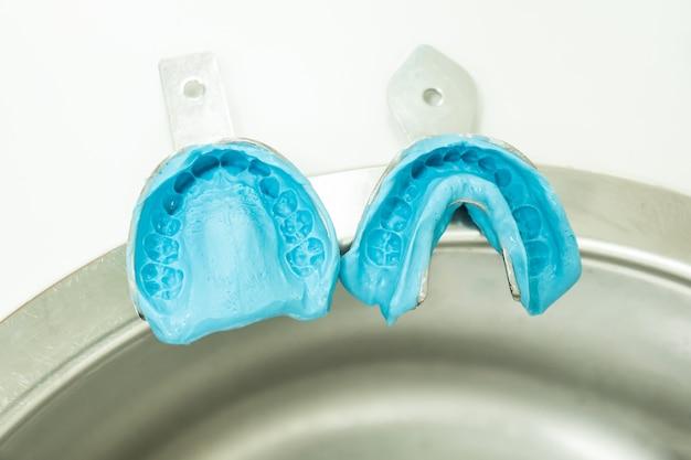 Twee blauwe alginaatmallen met twee gebitsafdrukmonsters