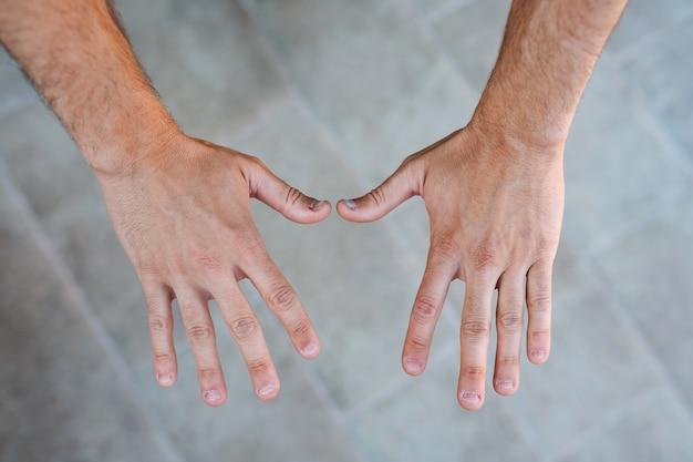 Twee jonge mensenhanden met lelijke en gebeten vingernagels